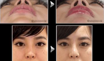 鼻尖鼻柱下降1