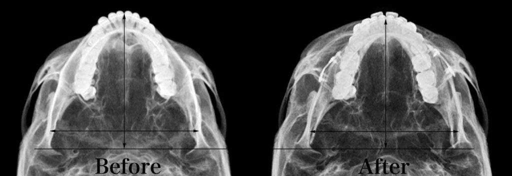 下顎骨軸位比較