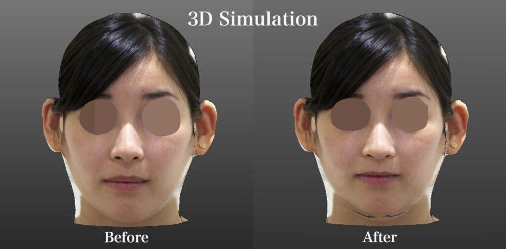 Simulation-F2