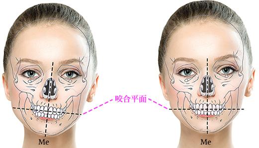 顔 を 左右 対称 に する 方法