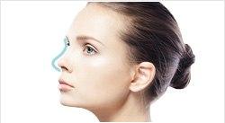 鼻の施術ページへ