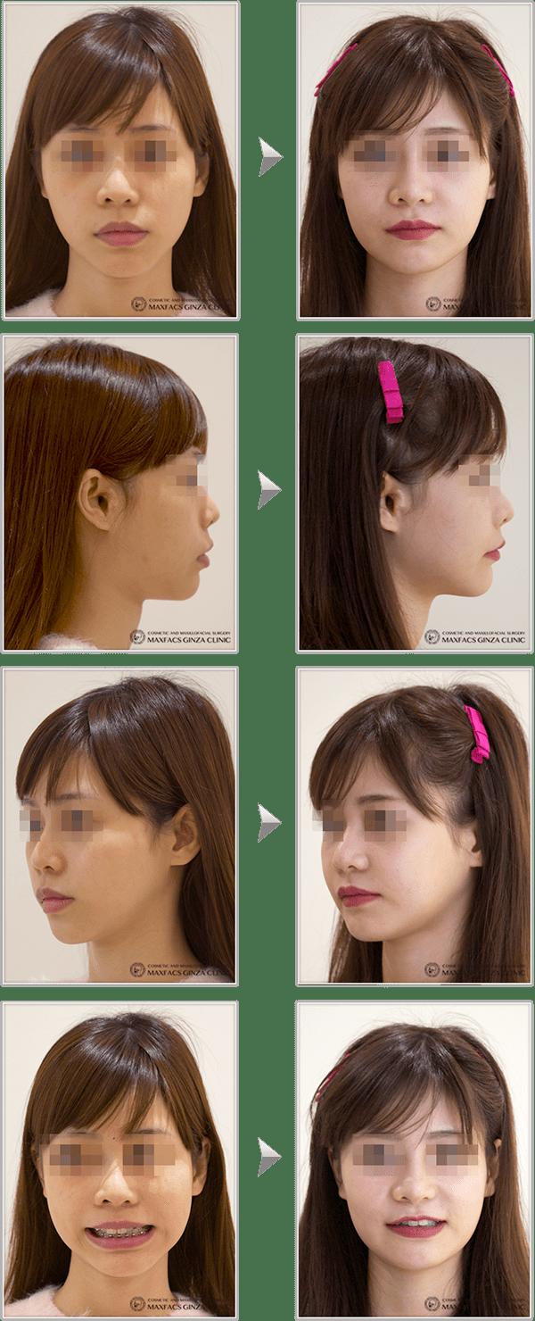 に 方法 なる 顔 小